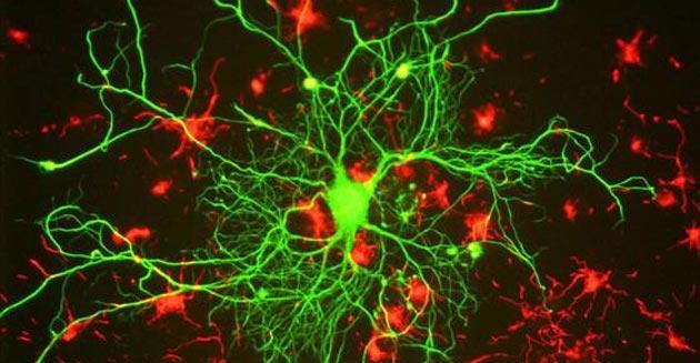 Scienza, scoperta stimolazione Wireless per accendere Neuroni