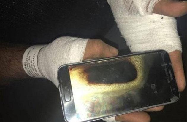 Odissea Samsung, esplode Galaxy S7 che ustiona il proprietario
